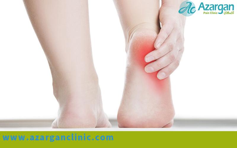 درمان خار پاشنه (التهاب فاشیا کف پایی) - کلینیک اذرگان