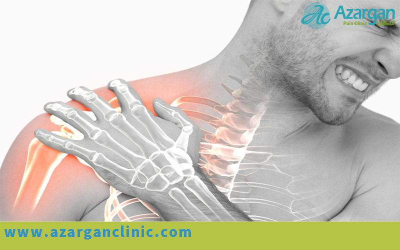 درمان خشکی و گرفتگی شانه و بازو - کلینیک چند تخصصی درد آذرگان