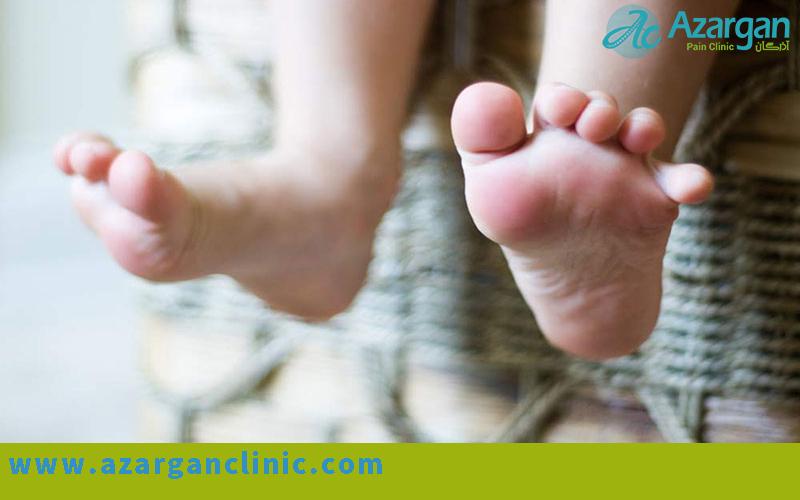 سندروم پاهای بیقرار - کلینیک اذرگان