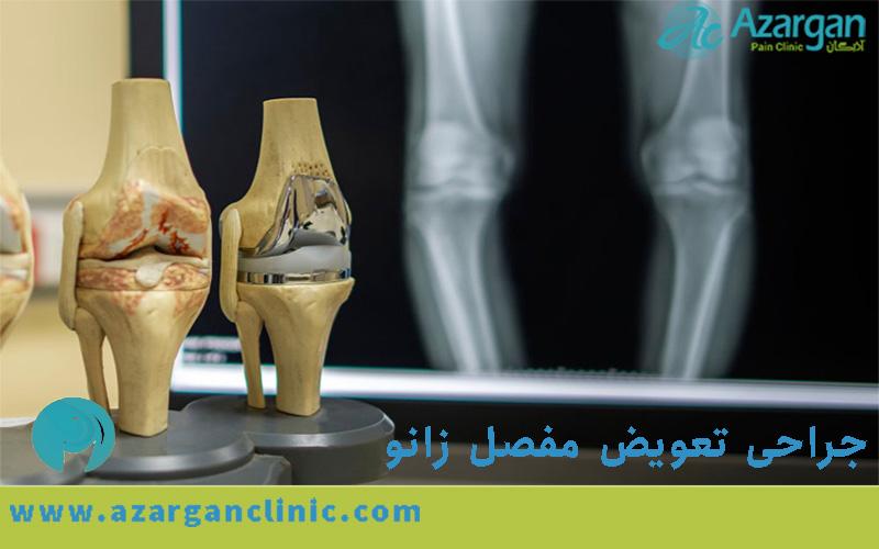مراقبت های جراحی تعویض مفصل زانو