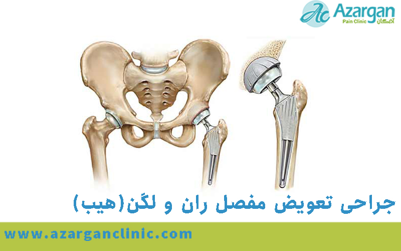 جراحی تعویض مفصل ران و لگن چگونه انجام میشود