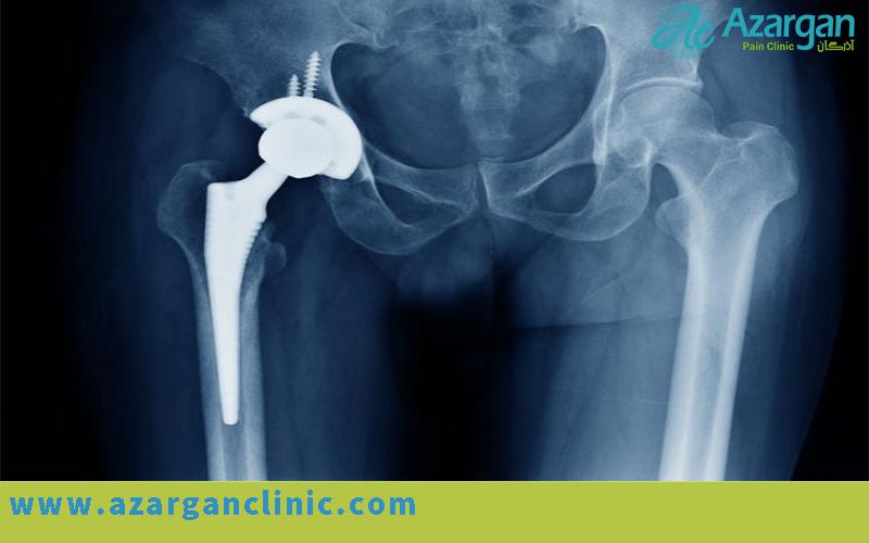 مراقبت های بعد از جراحی تعویض مفصل لگن