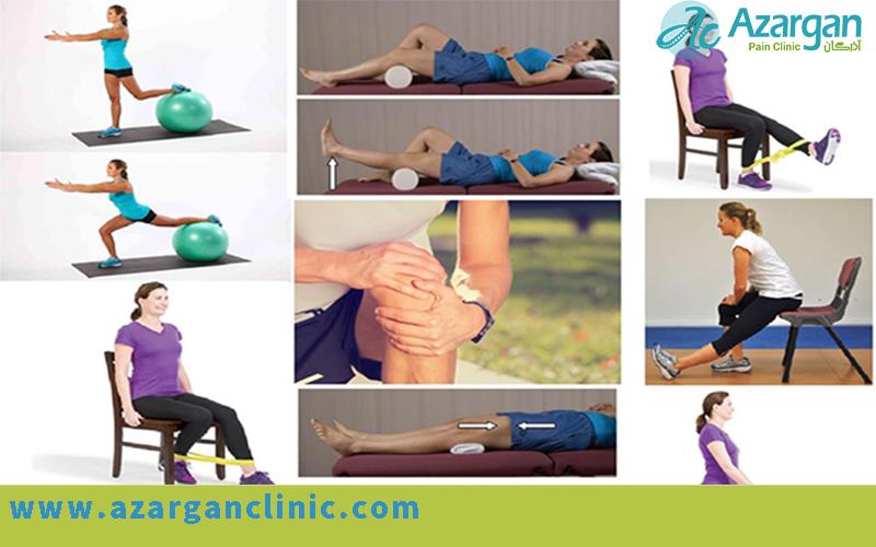 ورزش در درمان آرتروز زانو