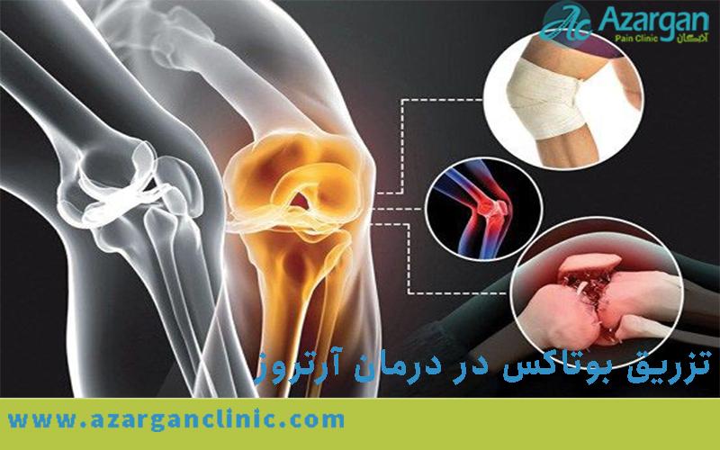 تزریق مفصلی بوتاکس در درمان آرتروز