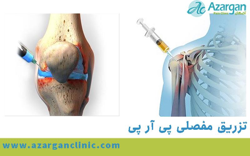تزریق مفصلی پی آر پی prp