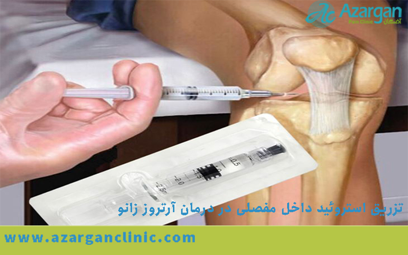 تزریق استروئید داخل مفصلی در درمان آرتروز زانو