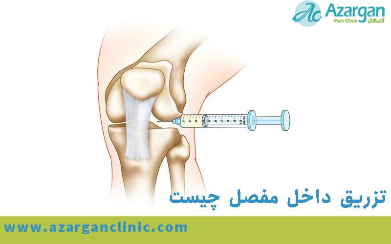 تزریق داخل مفصل چیست