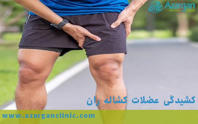 کشیدگی عضلات کشاله ران